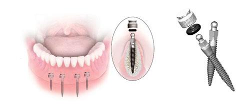 protminiimplanty