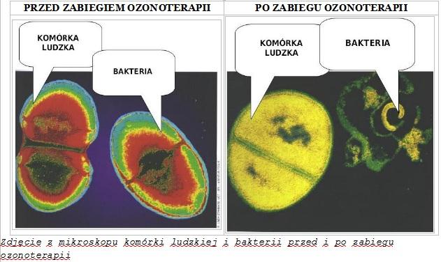zdjęcie z mikroskopu przedstawiający efekty leczenia ozonem