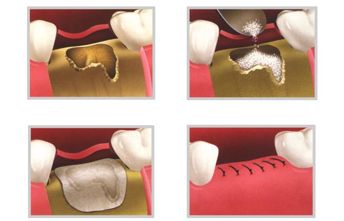 regeneracja kości zęba