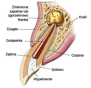 schemat zęba