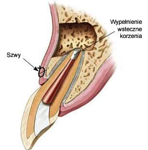 3 schemat zęba