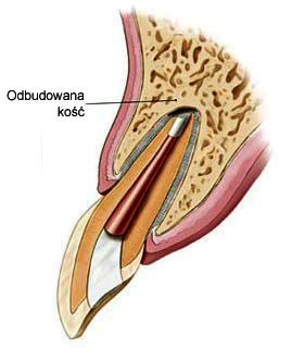 4 schemat zęba