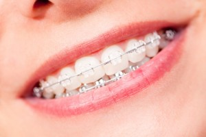 aparat stał ortodontyczny u młodej kobiety