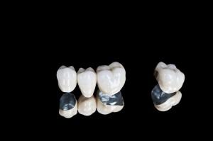 korony zębowe na czarnym tle