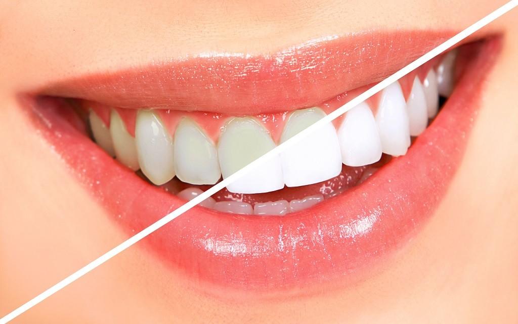 wybielone lśniące białe zęby