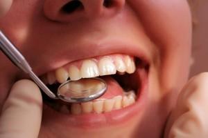 zadbane zęby u mężczyzny